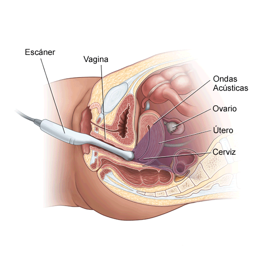 endovaginal